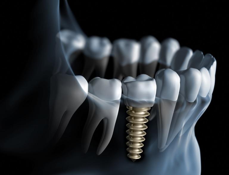 implante zona 04