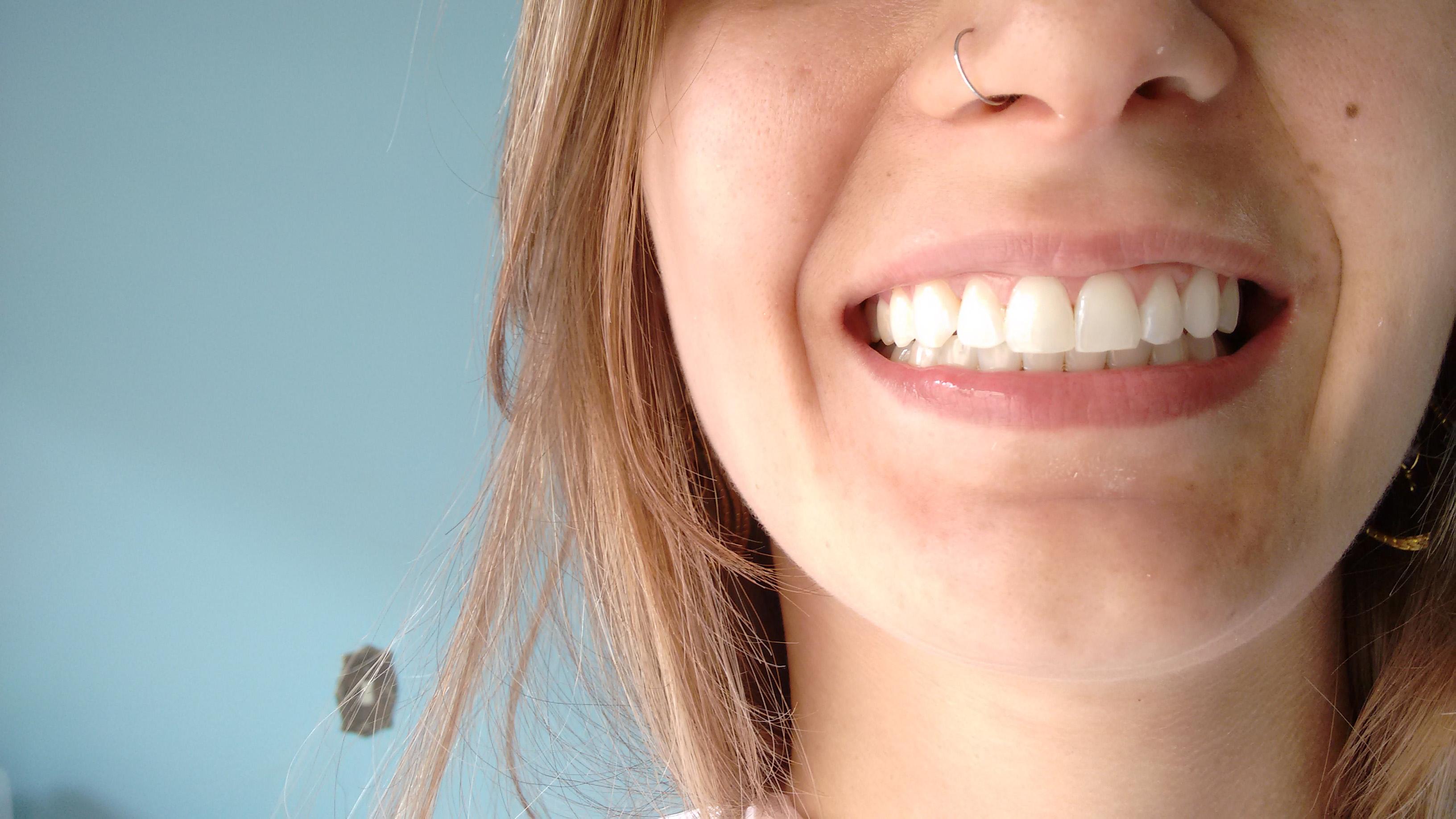 branqueamento dental