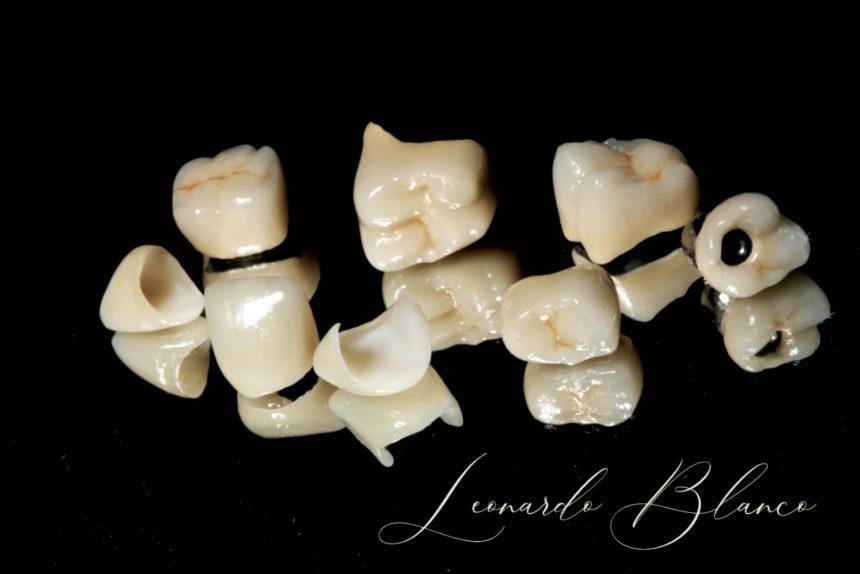 Próteses Dentais